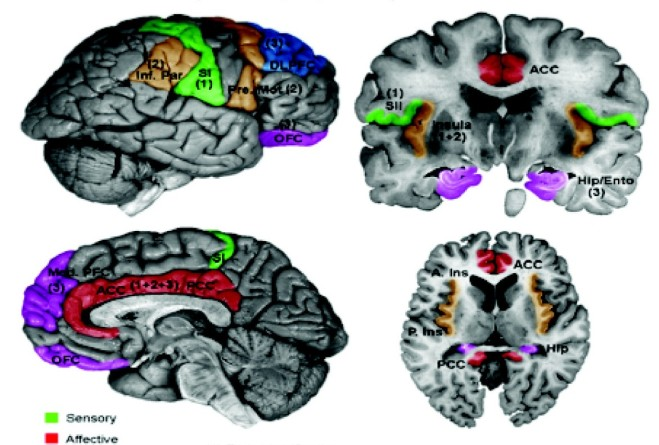 Schematic_of_cortical_areas_involved_with_pain_processing_and_fMRI_cropped